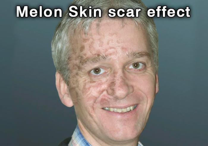 Melón textura de la piel