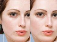 Suavização da pele